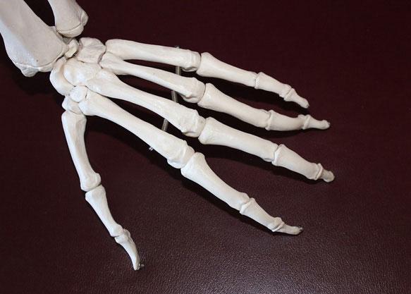 снятся кости