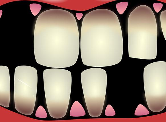 снится зуб