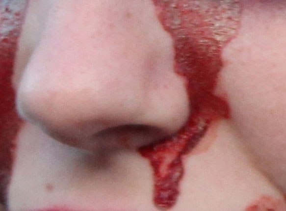 сонник носа видеть знакомого с кров у